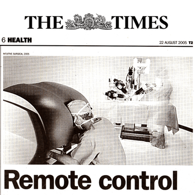 remote prostate surgery - the times